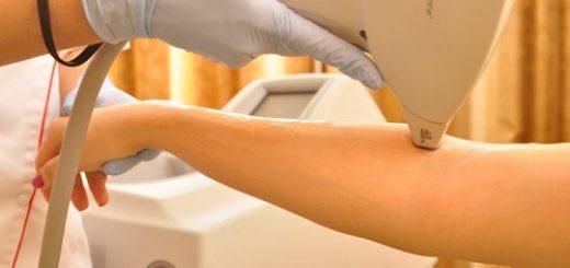 depilacja przy pomocy lasera