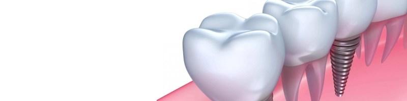 Implant stomatologiczny